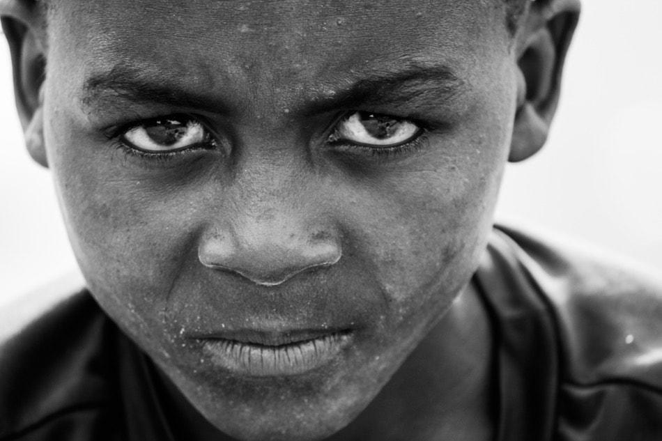 طفل إفريقي ينظر بغضب